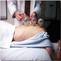 Ventouses médicales mode d emploi